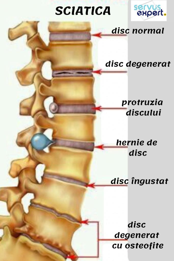 partea lombara