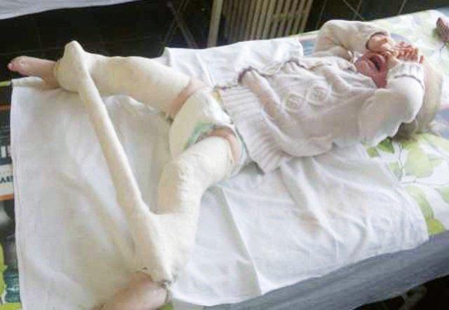dureri articulare sau nervoase sciatice simptome de artroză a articulațiilor picioarelor