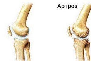 artroza tratamentului articulației genunchiului este eficientă menstruatie artroza genunchiului
