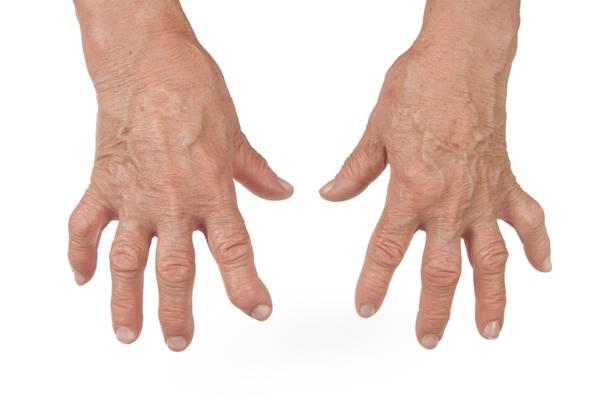 articulațiile de pe falangele degetelor doare