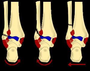 tratament articular calcaneal unguent pentru durere în articulații genunchi forum