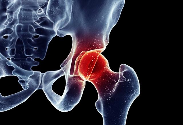 de ce articulația șoldului doare în partea stângă