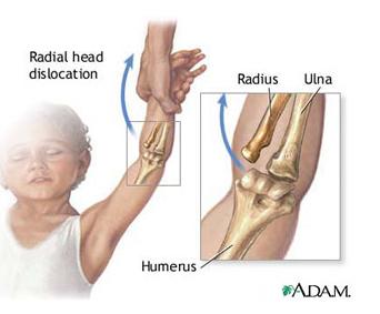 dureri articulare ce să facă recenzii prescripție de tratament de umflare articulară