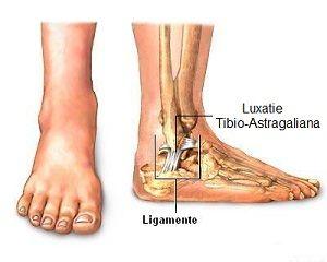 zona externă a articulației gleznei doare