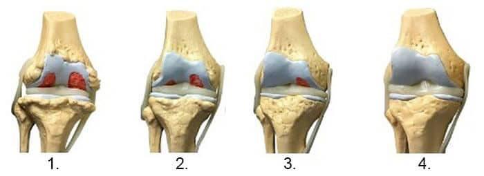 exacerbarea de primăvară a bolii articulare unguente pentru durere și inflamația articulațiilor