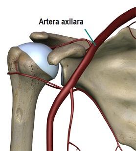 artrita de sold la adult artrita reumatoidă a cotului