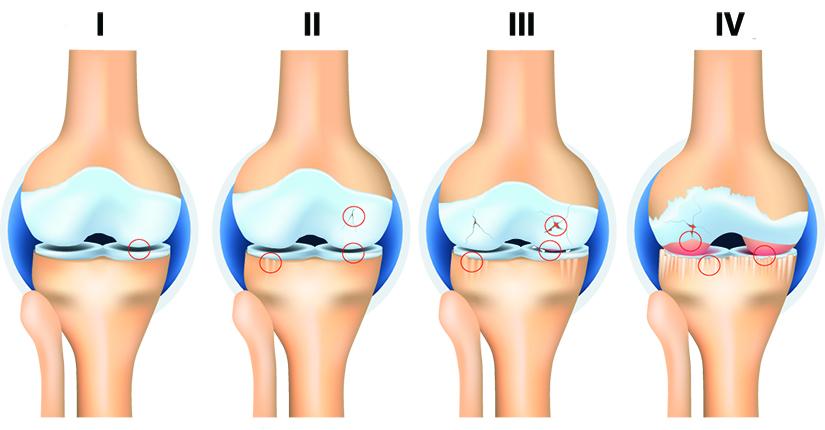 durere postoperatorie la genunchi