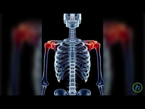 Tratamentul artrozei în Vitebsk cele mai bune unguente pentru tratamentul artrozei genunchiului