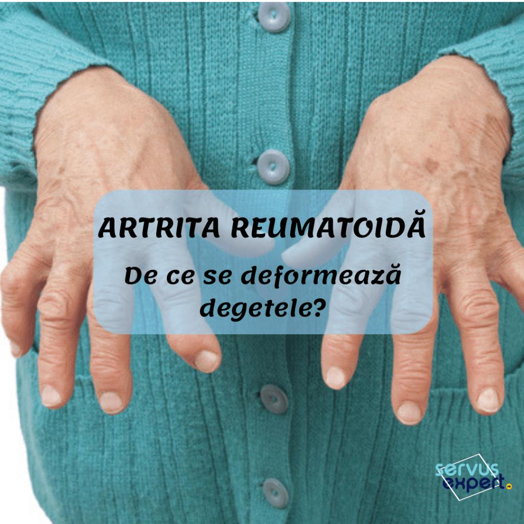 artrita articulațiilor tratamentul mâinilor
