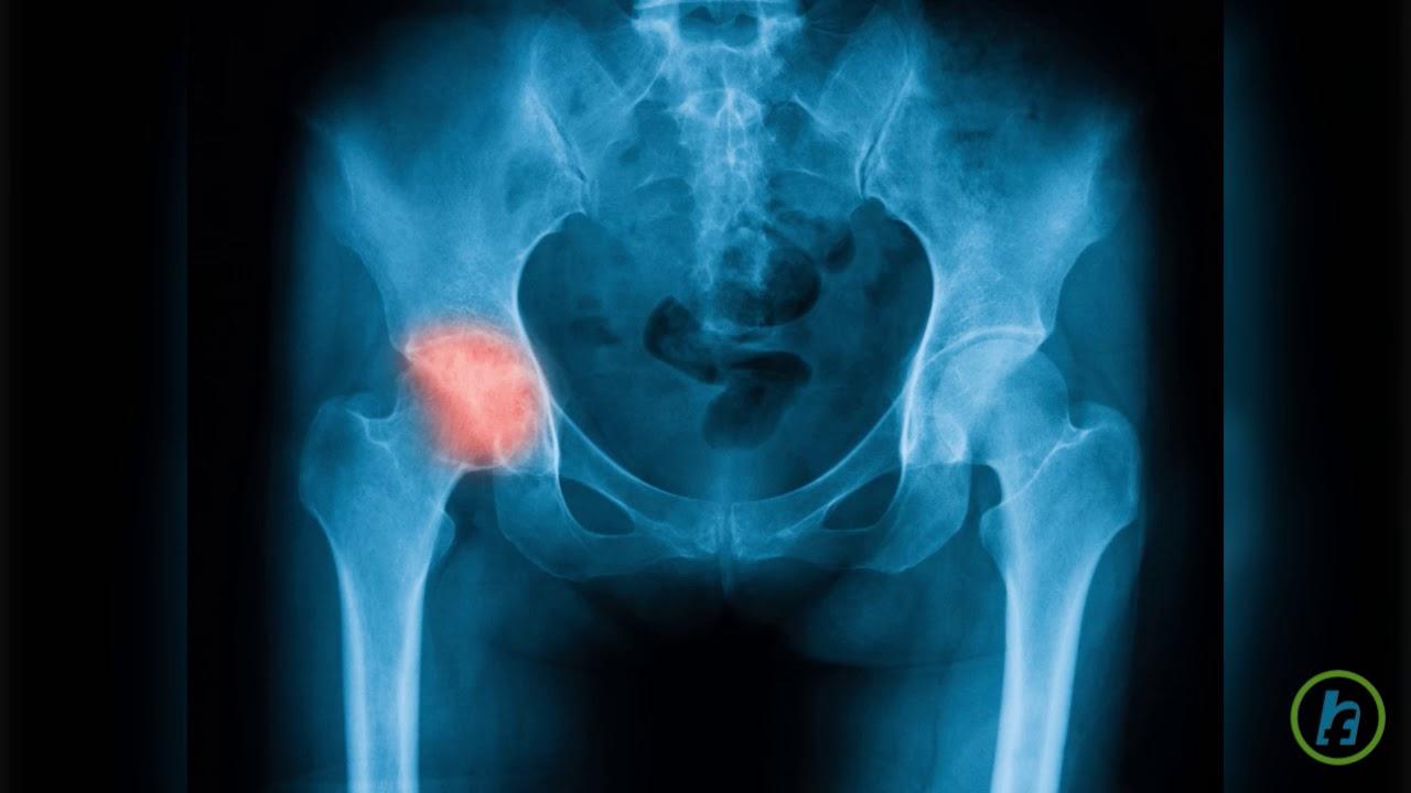 durere acută în articulația șoldului drept