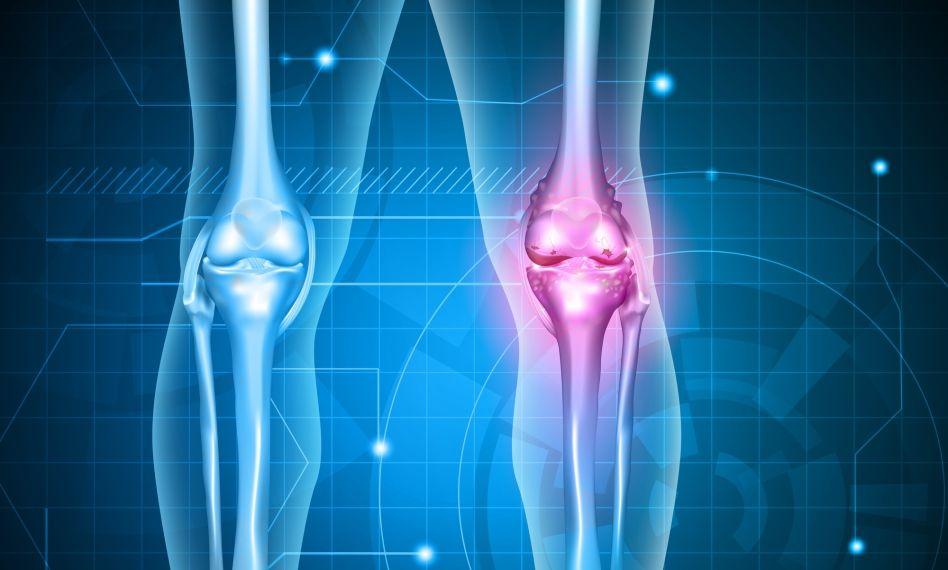 medicamente utilizate pentru artroza articulară dureri neurologice la genunchi