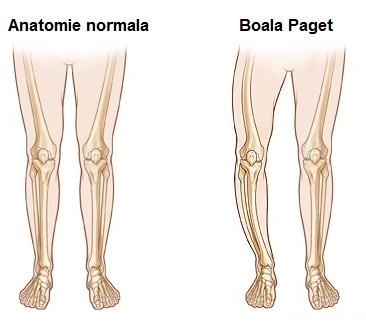 boala de șold la vârstnici strângând articulațiile la tratamentul genunchilor