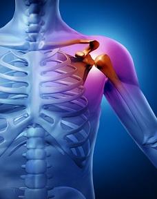 tratament cu brusture și artroză