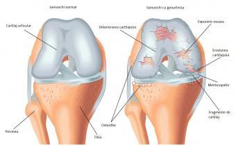 dureri de genunchi și intervenții chirurgicale dacă articulațiile karma doare