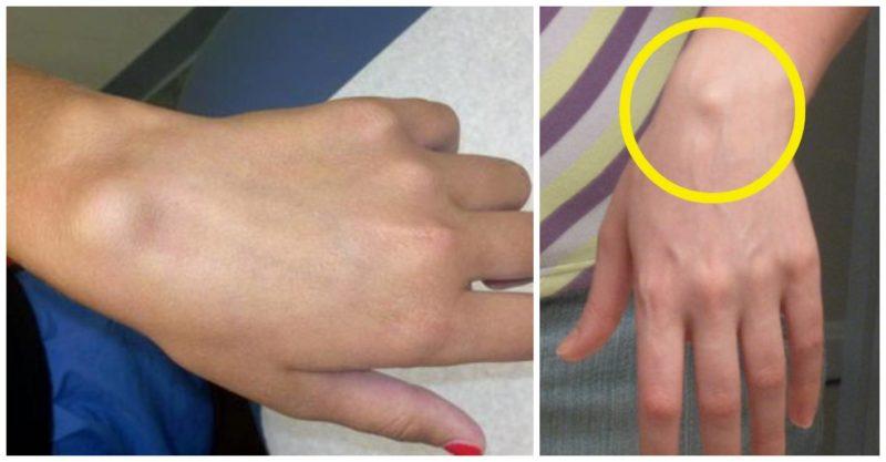 articulația încheietura mâinii doare o umflătură tratament pentru bursita articulației șoldului