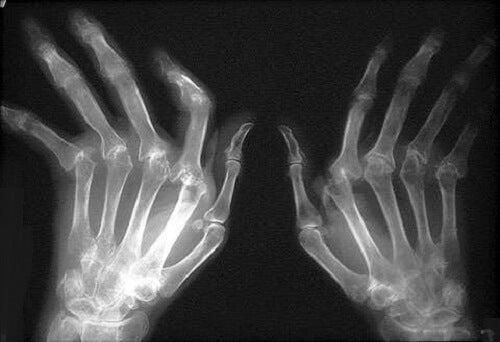 cum să tratezi artrita reumatoidă cu medicamente artrita reumatoidă a lichidului genunchiului