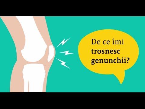 boală articulară a pomeței modificări articulare ale artritei reumatoide
