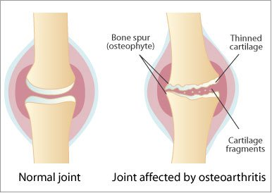 Menovazina ajută la durerile articulare