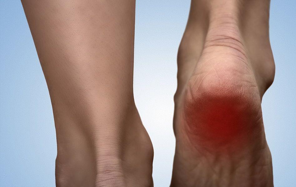 durerea de glezna si calcai inflamatie urologica articulara