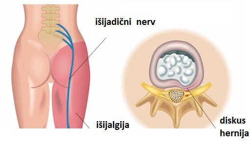 artroza tratamentului durerii severe la genunchi
