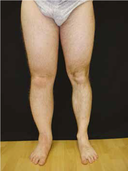 tratamentul edemelor la genunchi