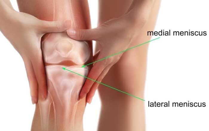 meniscul afectează tratamentul simptomelor genunchiului