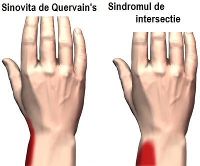 tratamentul ganglionului tendonului la încheietura mâinii durere la nivelul încheieturii încheieturii și cotului