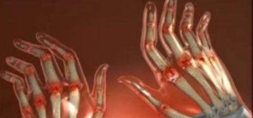 articulațiile mâinii se înroșesc și sunt dureroase