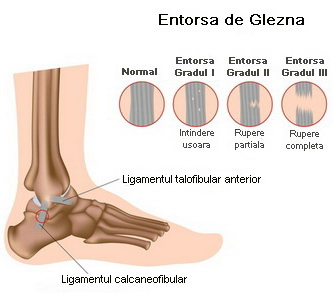 ruperea ligamentelor gleznei tratament unguent tratament în articulațiile serbiei