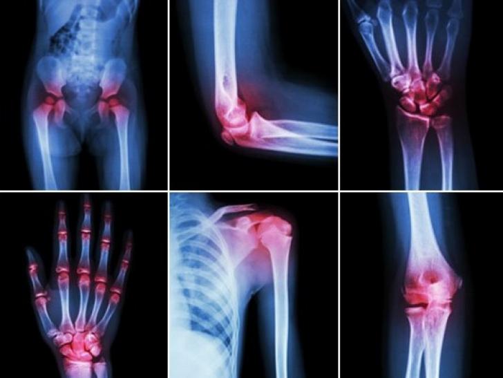 durerea în articulația șoldului cedează la nivelul piciorului