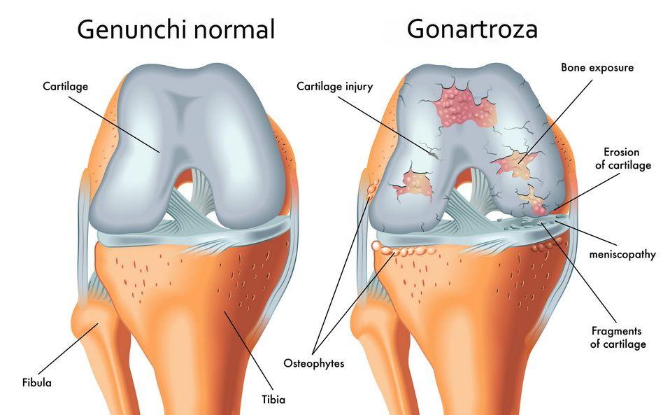 cremă pentru durere în articulațiile umărului care sunt simptomele artrozei genunchiului
