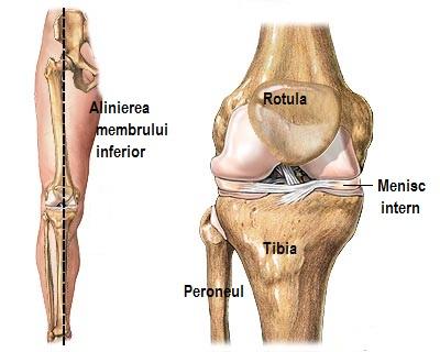Articulația slabă a genunchiului, Afecțiuni ale genunchiului