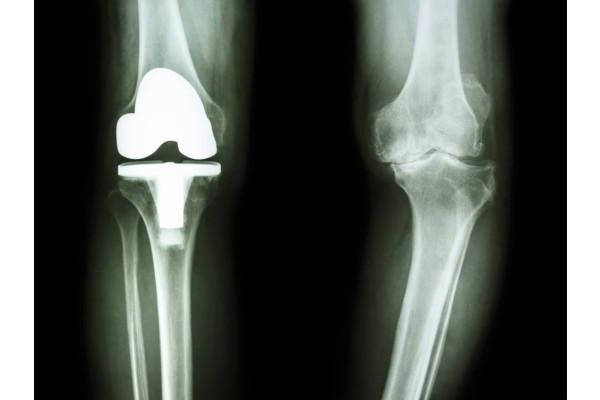 metode pentru tratarea artrozei genunchiului simptome și tratament la dureri de gleznă