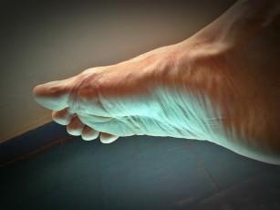 dureri la nivelul articulațiilor și apariție a tratamentului metode de tratare a durerii articulare a oamenilor