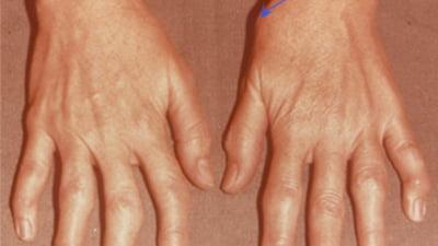cum să tratezi artroza cu degetul mare de ce durează articulația gleznei dimineața
