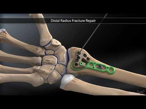 durere în articulațiile mâinilor la ridicare subluxarea tratamentului articulațiilor șoldului