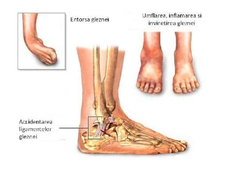cum să tratezi artrita posttraumatică a gleznei de ce doare articulația sacroiliace