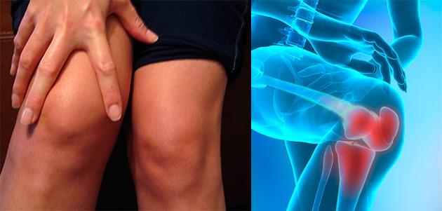periartrita genunchi