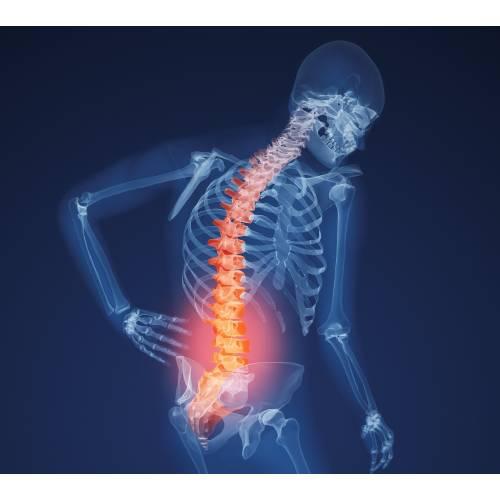 Boala latină a oaselor și articulațiilor ce unguent când articulațiile cotului doare