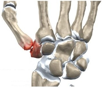 unguent pentru articulații citralgin dureri articulare la coapsa la mers