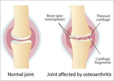 Artroza posterioara