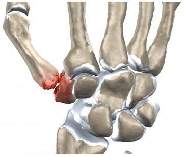 cauzele durerii în articulația degetului