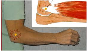 simptomele epicondilitei bolii cotului unguente pentru bursita articulației șoldului