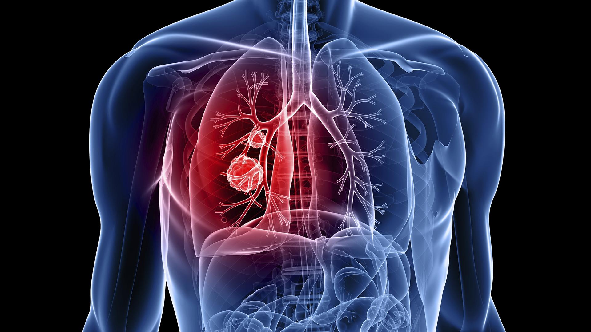 dureri articulare cu sarcoidoza plămânilor artroza simptome și tratament artrita