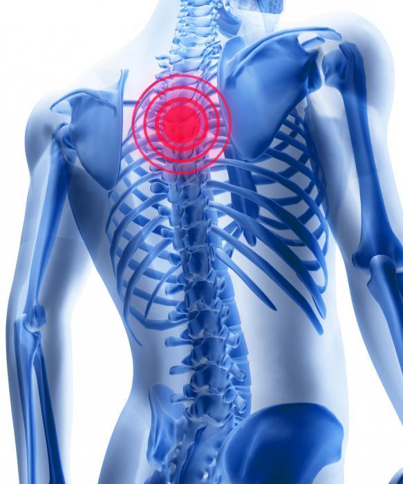 cum se tratează unguentul pentru osteochondroza mamară