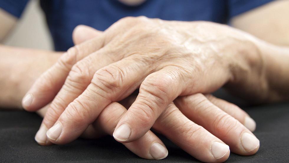 Artrita reumatoidă a gâtului cum să se trateze, Gel de unguent pentru osteochondroză