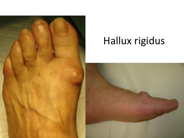 tratamentul artrozei bolii piciorului