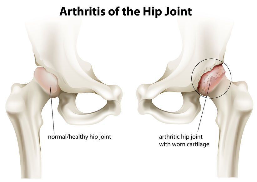adolescent artroza articulației șoldului ce poate provoca dureri de cot