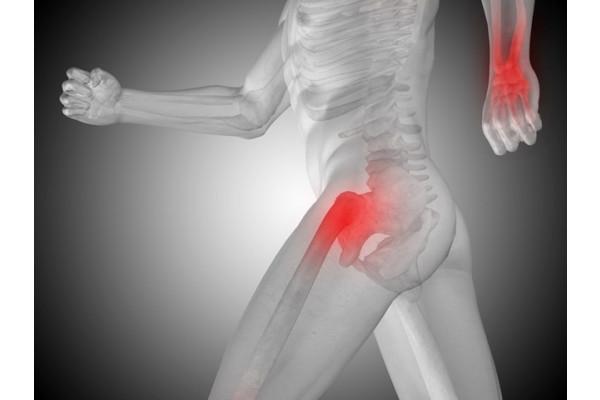 cu artroza simptomelor șoldului articulația pe un deget doare luxația