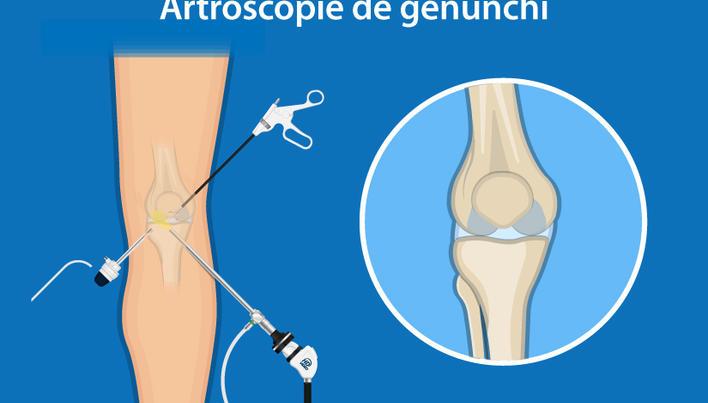 sinovita medicamentelor articulației genunchiului după durerile articulare ale berii